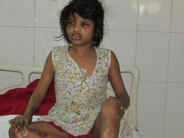 """Sốc với """"người khỉ"""" hung hăng, đi bằng 4 chân ở Ấn Độ"""