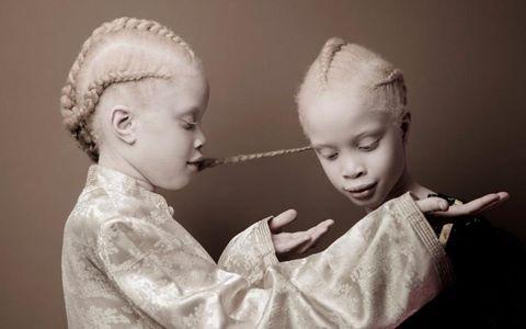 Cặp song sinh bạch tạng nổi tiếng nhờ vẻ đẹp độc đáo