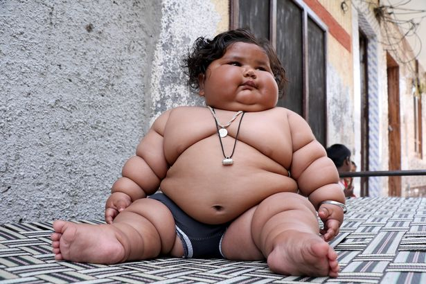 Em bé siêu béo nặng 19kg khi chỉ mới tám tháng tuổi
