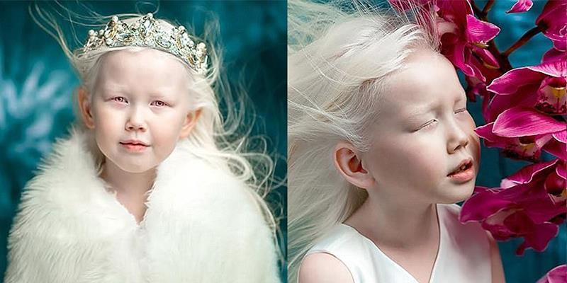Nàng Bạch Tuyết 8 tuổi đẹp nhất xứ Siberia nhờ căn bệnh bạch tạng