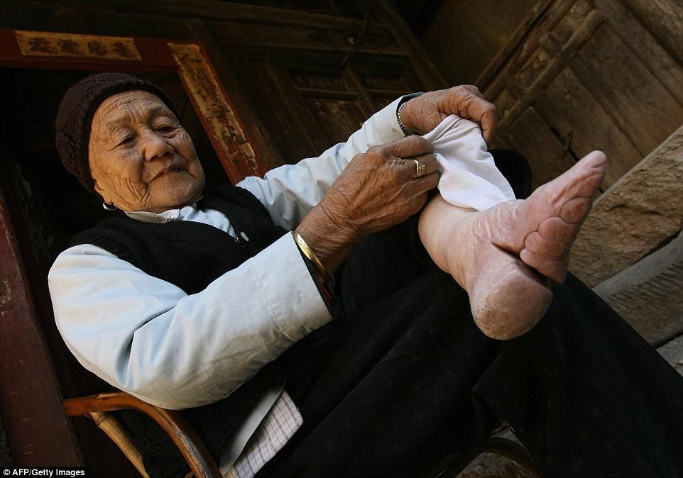 Đôi chân gãy gập đau đớn của những phụ nữ bó chân
