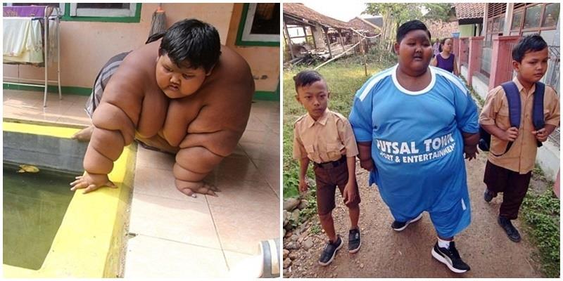 Cậu bé 11 tuổi nặng gần 200kg phải phẫu thuật dạ dày để giảm cân