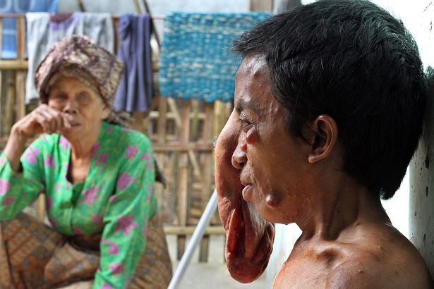 """Indonesia: """"Người mặt voi"""" khiến ai nhìn cũng khiếp sợ"""