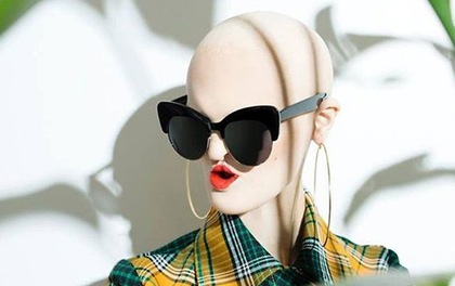 Gặp gỡ người mẫu đột biến gen xấu lạ đã phá vỡ chuẩn mực cái đẹp thời trang