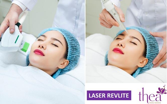 Cặp đôi Laser và PRP cho da đẹp không tỳ vết