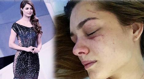 Hoa hậu Trái Đất Venezuela bị nữ ca sĩ đánh đến nhập viện