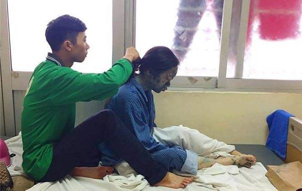 Cảm động hình ảnh bạn trai chạy xe ôm chăm sóc người yêu bị thủy đậu