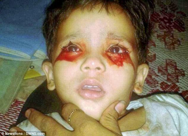 Cô bé thường xuyên khóc ra máu khiến y học bó tay