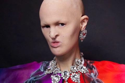 Melanie Gaydos: Người mẫu xấu lạ của thế giới thời trang
