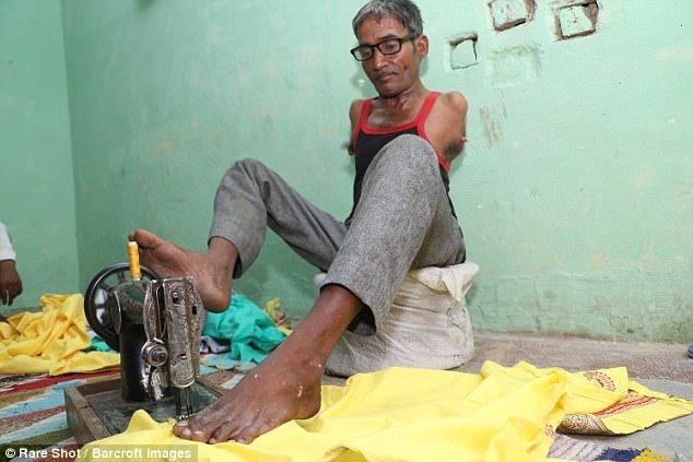Thiếu đôi bàn tay… vẫn có thể trở thành một thợ may tài ba
