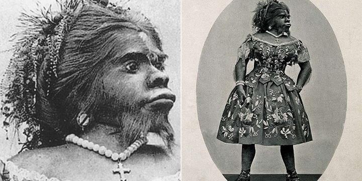 Cuộc đời bi thảm của người phụ nữ nhiều lông, bị coi là xấu nhất thế giới