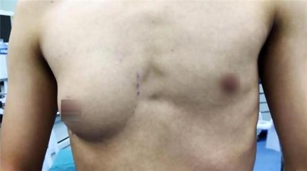 Chàng trai khổ sở vì tự dưng một bên ngực còn to hơn cả phụ nữ