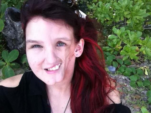 Căn bệnh lạ khiến khuôn mặt cô gái xinh đẹp trở nên méo mó khó tin