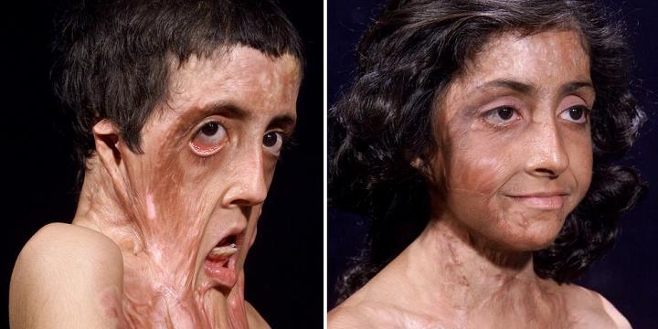 """Cô bé có gương mặt biến dạng kinh hoàng vì bỏng nặng """"lột xác"""" sau 12 lần phẫu thuật"""