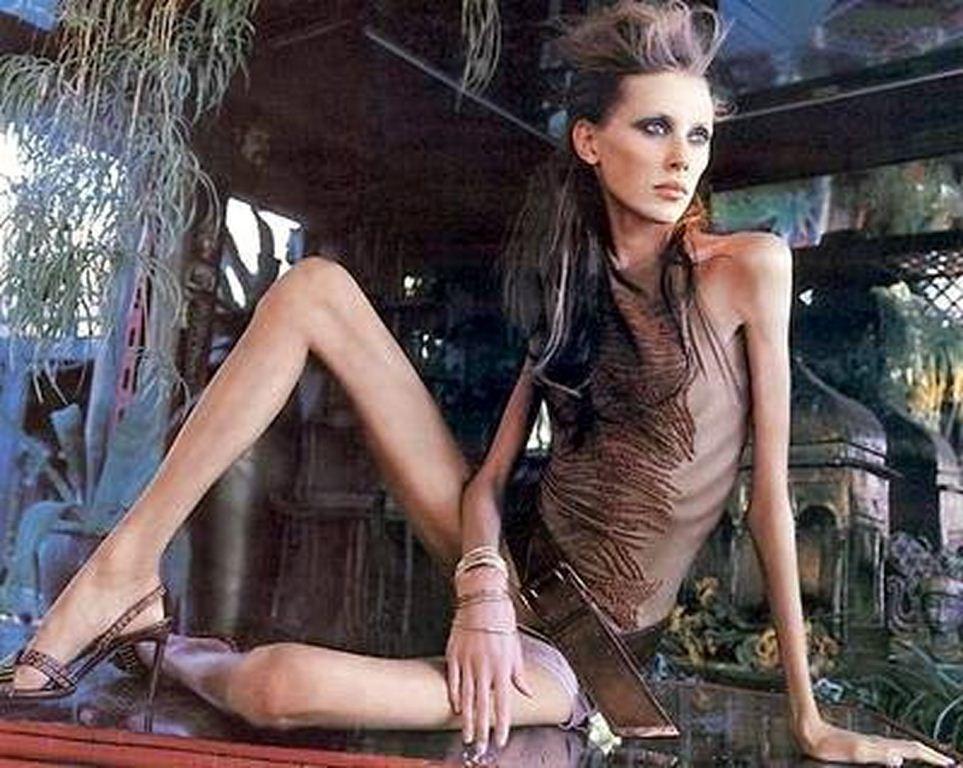 Những hình ảnh gây sốc về người mẫu siêu gầy