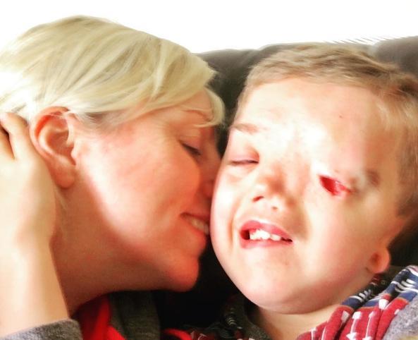 Mẹ phẫn nộ vì ảnh con trai biến dạng khuôn mặt bị nhà mạng gỡ bỏ
