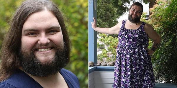 Cô gái 39 tuổi mắc căn bệnh quái lạ: mọc râu và lông ngực rậm rạp như đàn ông