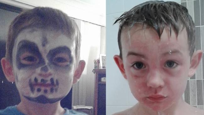 Cậu bé bị bỏng da mặt sau khi trang điểm chơi Halloween