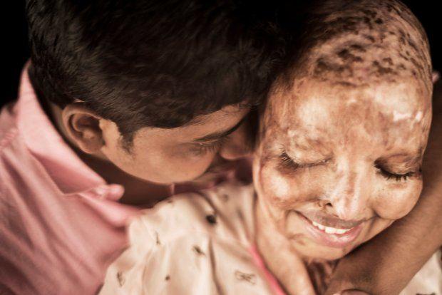 Cô gái bị tạt axit mù mắt tìm thấy bạn đời trong khi tuyệt vọng nhất