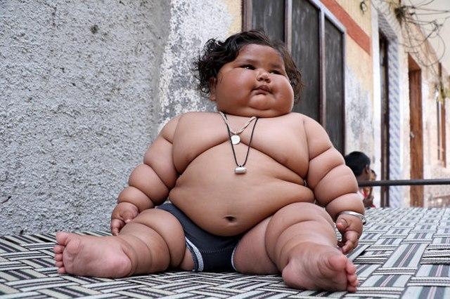 Bé gái Ấn Độ 8 tháng tuổi cân nặng bằng bé 6 tuổi