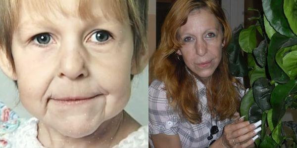 Cô gái mới 21 tuổi trông chẳng khác nào bà lão bởi căn bệnh lạ