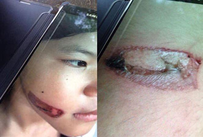 Công an điều tra nghi án bé gái bị cha dí sắt nóng vào mặt