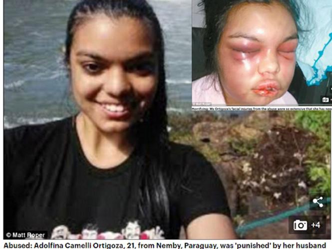 Cô gái trẻ bị chồng bạo hành mỗi khi có người like ảnh cô trên Facebook
