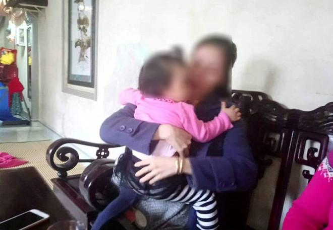Gia đình tố người giữ trẻ đánh bầm tím đùi bé gái một tuổi