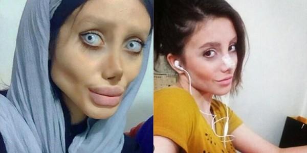 Sự thật về cô gái phẫu thuật 50 lần để giống Angelina Jolie