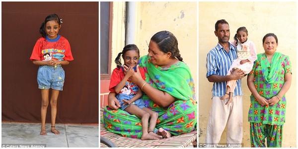 Cô gái Ấn Độ không bao giờ lớn, tuy đã 18 tuổi nhưng vẫn tí hon