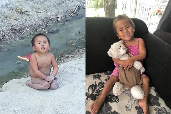 Em bé co ro ở Mường Lát được cặp vợ chồng Sài Gòn nhận nuôi