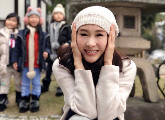 Mỹ nhân TVB Lê Tư mặt sưng và cứng đơ, bị nghi thẩm mỹ