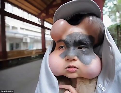 Căn bệnh kỳ lạ khiến cô gái khổ sở vì 4 trái bóng trên mặt