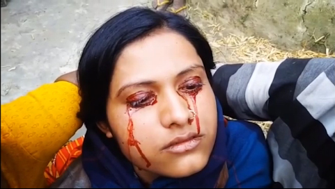 Cô gái đổ mồ hôi ra máu, bị chồng cho là phù thủy