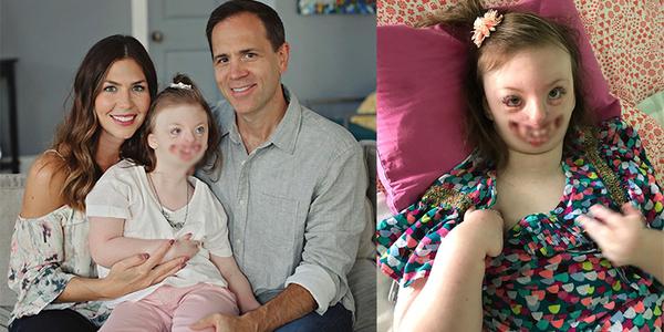 Bé gái 9 tuổi dị dạng bị lạm dụng hình ảnh tuyên truyền phá thai