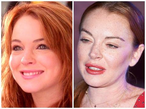 Lindsay Lohan: Ngôi sao nghiện phẫu thuật thẩm mỹ và già cỗi ở tuổi 32
