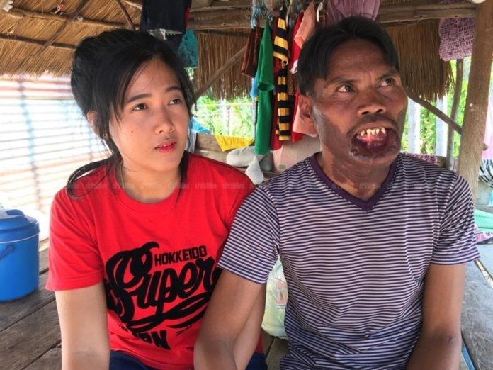 Bị chồng cũ bạo hành, cô gái tìm thấy hạnh phúc bên anh chàng xấu xí
