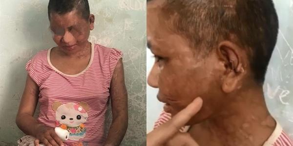 Lời kể của cô gái bị chủ dùng kìm bẻ răng, khò da và dao lam rạch mặt