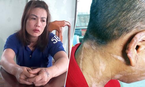 Cuộc chạy trốn trong mưa của cô gái Kon Tum bị bà chủ 'ngáo đá' tra tấn
