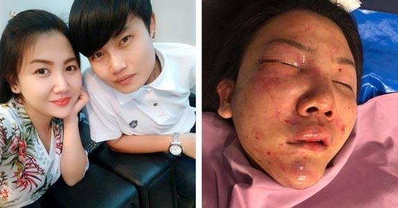 Cô gái bị bạn trai đánh đập dã man nơi công cộng khiến CĐM phẫn nộ