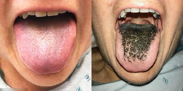 Lưỡi của người phụ nữ này bỗng chuyển sang màu đen và có lông
