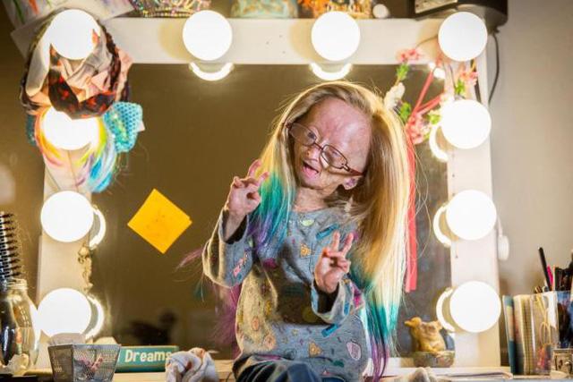 Mắc hội chứng lão hóa hiếm gặp, bé 11 tuổi vẫn trở thành ngôi sao mạng