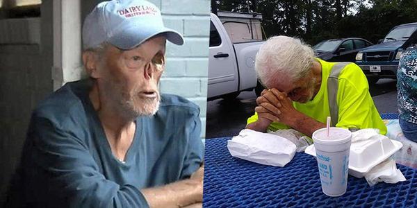 Cụ ông bị kỳ thị vì khuôn mặt biến dạng do điều trị ung thư