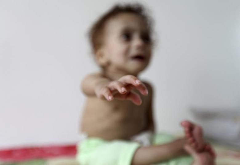 Kinh hoàng người giữ trẻ bỏ đói bé 14 tháng tuổi trong 3 tuần