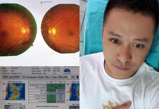 Tuấn Hưng gặp tai nạn sân cỏ, mắt bị xuất huyết và giảm thị lực