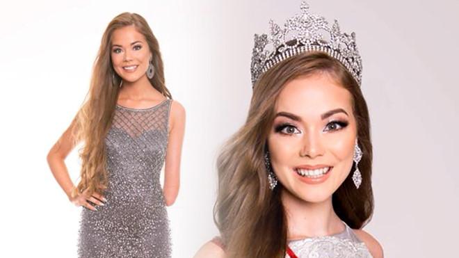 Cô gái xinh đẹp mất tay bẩm sinh vào Top 25 Hoa hậu Siêu quốc gia