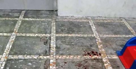 Bé 3 tuổi bị đá rơi trúng đầu tử vong khi chơi dưới sân chung cư