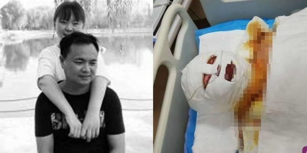 Cha hiến da để cứu sống con gái bị bỏng không còn hình người