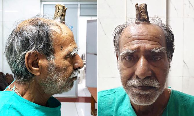Cụ ông Ấn Độ bị mọc sừng trên đầu
