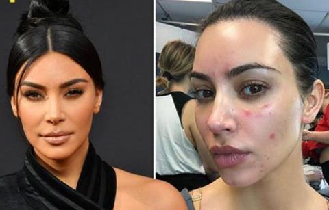 Kim Kardashian đăng ảnh mặt mộc bị vảy nến